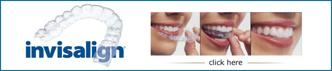 Same Day Dental Implants Miami